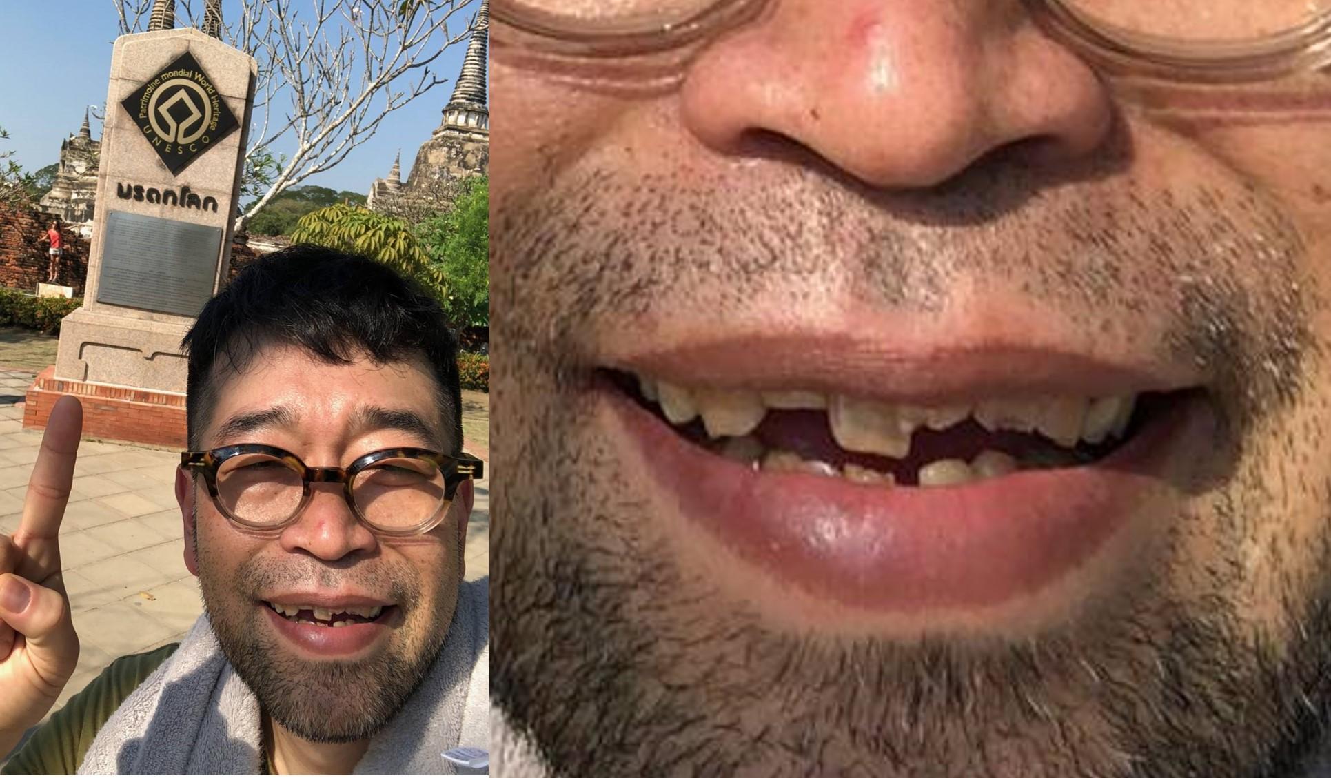 歯並び 槇原